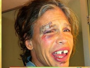 Steven Tyler incidente