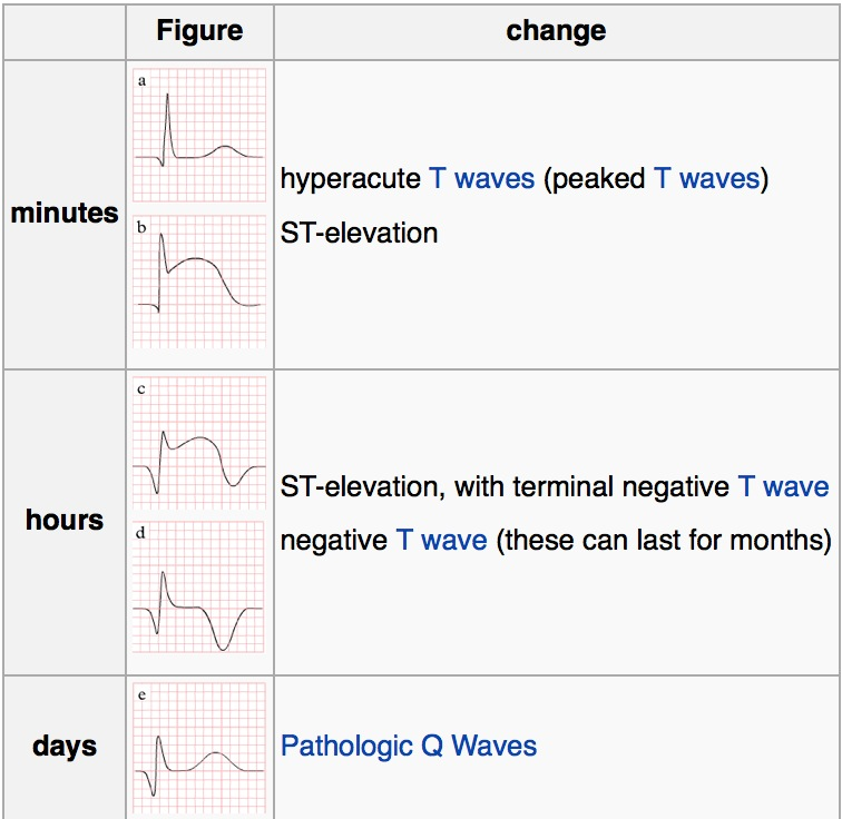 Evolution of ECG in STEMI (source)