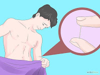obat infeksi kencing nanah