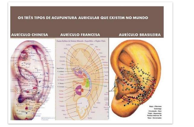 Famosos AURICULOTERAPIA - MICROMERIDIANOS AURICULARES TI16