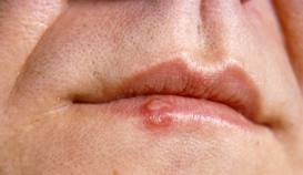 Sores in the mouth oral cancer treatment, oral cancer images