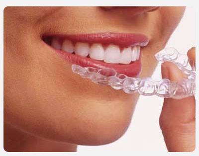 Odontologia Clareamento Dental