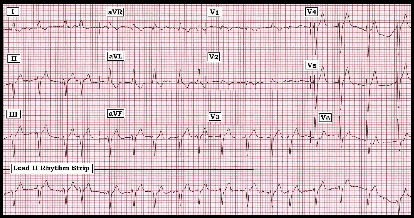 Ekg rythm strip 3