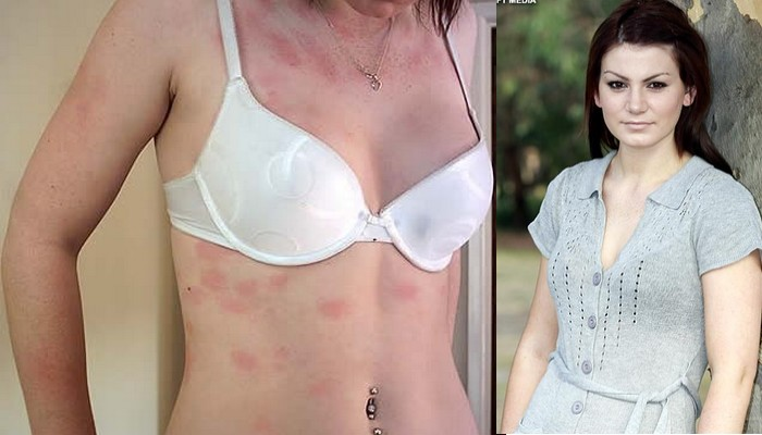 10 People With Strange Medical Conditions