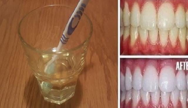 Ternyata, Anda Bisa Putihkan Gigi dalam Waktu Tiga Menit