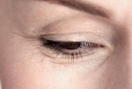 نصائح مهمة لحماية عينك من التجاعيد