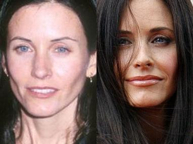 Courteney Cox After Plastic Surgery Before