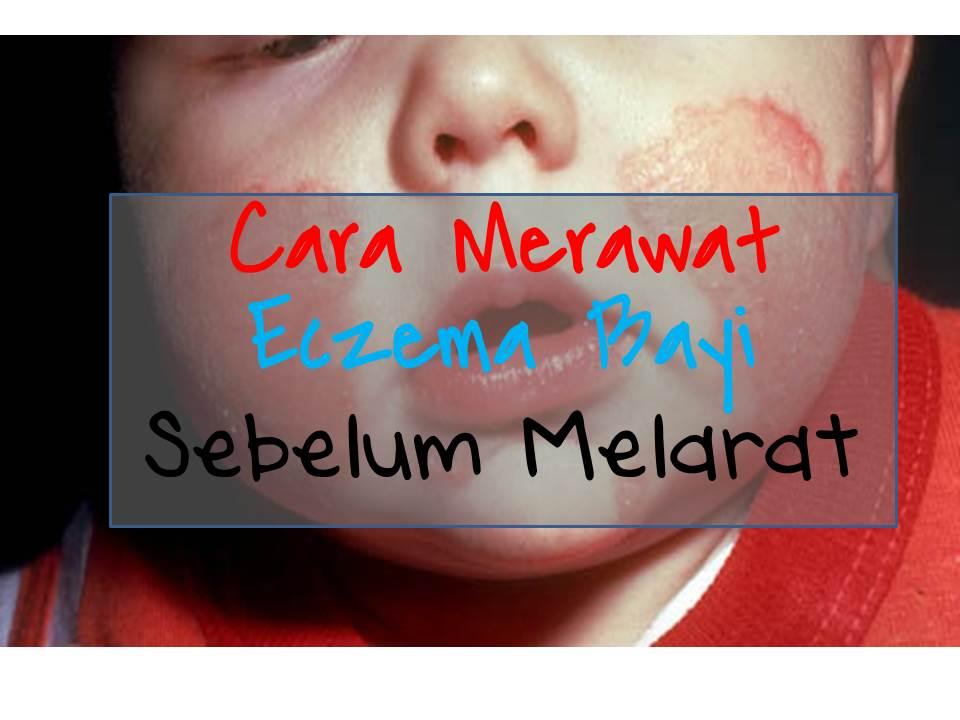 cara merawat eczema bayi sebelum luka melarat