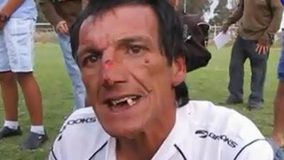 ¡Un árbitro chileno terminó sin dientes! (vídeo)