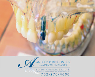 Anthem Periodontics and Dental Implants displays a plastic model of the jaw with a dental implant placed to show how the implant will function in the mouth