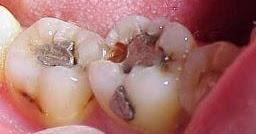 Tips Cara Merawat Gigi Berlubang Dan Keropos Cara Santo