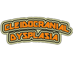 Cleidocranial Dysplasia Symptoms, Causes, Treatment, Celebrities