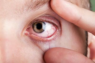Obat Infeksi Mata Herbal