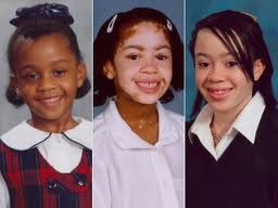 Young black girl with Vitiligo.