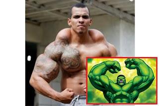 Video Dia ingin Jadi Seperti Incredible Hulk Ahli Bina Badan Suntik Lengan Dengan Minyak Alkohol