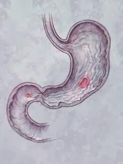 Symptoms of Ulcers in Men