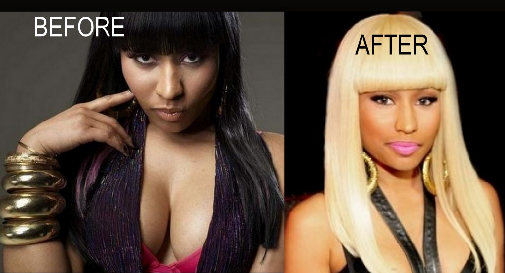 Nicki minaj before and after skin