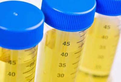 Urin Kuning Selepas makan B Comlpex kenapa erk