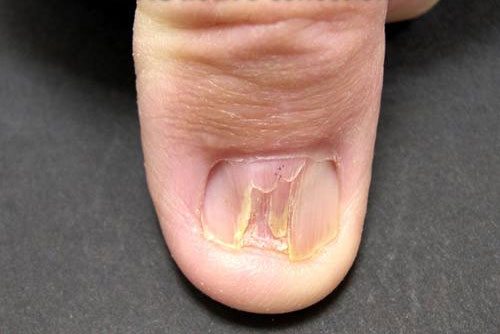 Nails Care: Lichen planus of nails Diseases