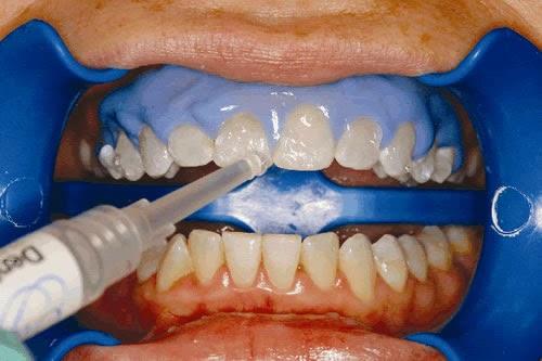 冷光美白要做牙齦防護