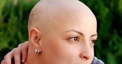 Cancer And Hair Loss
