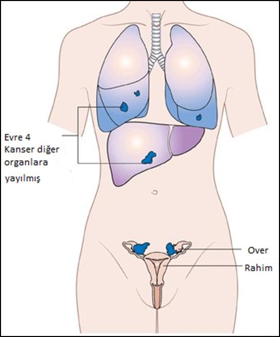 over kanseri