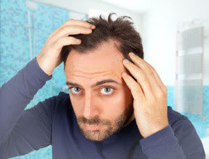 Best Hair Loss Treatment For Men: A No-Nonsense Guide