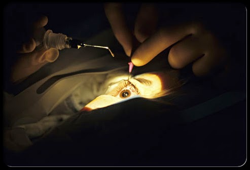 Operasi Mata Katarak | Operasi Katarak