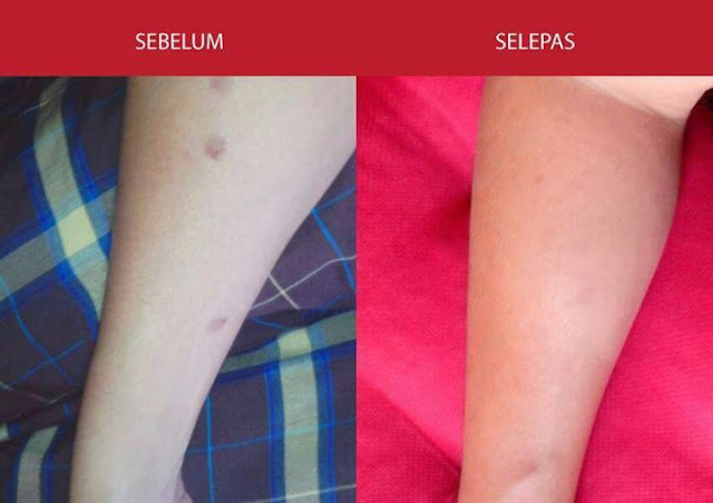 Testimoni Azanis Scar Serum - Parut Minyak Panas