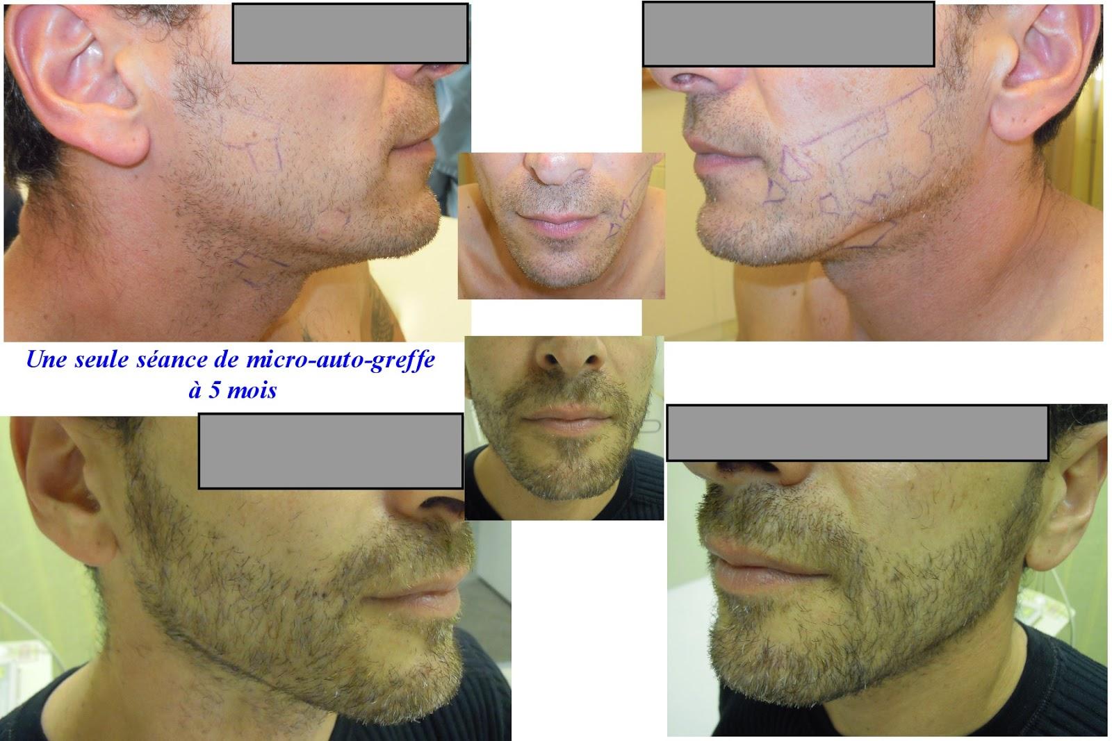 hair for life implants capillaires vos cheveux mais aussi votre barbe pour la vie. Black Bedroom Furniture Sets. Home Design Ideas