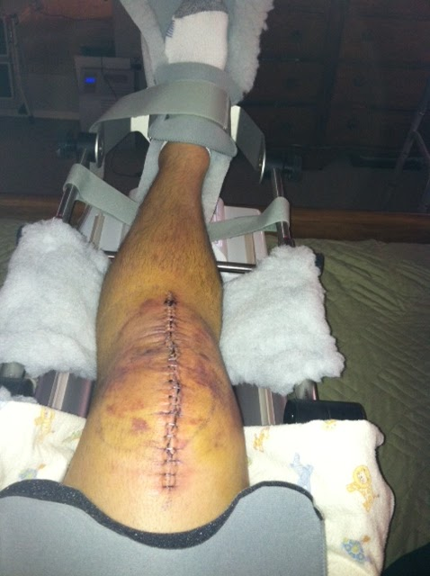 acl surgery cpm machine