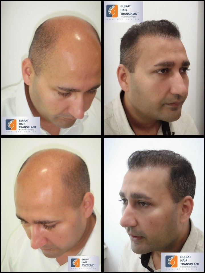 hair transplants results
