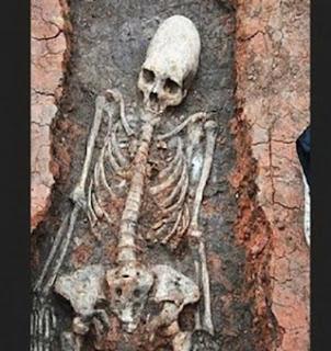 Pria ini Curi Tengkorak Dari Kuburan Untuk Dijadikan Obat