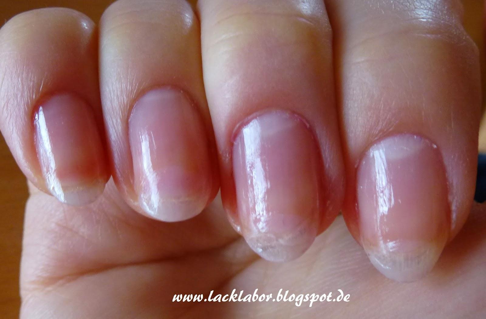 Lack Labor: Essence Studio Nails XXL Nail Thickener im Test