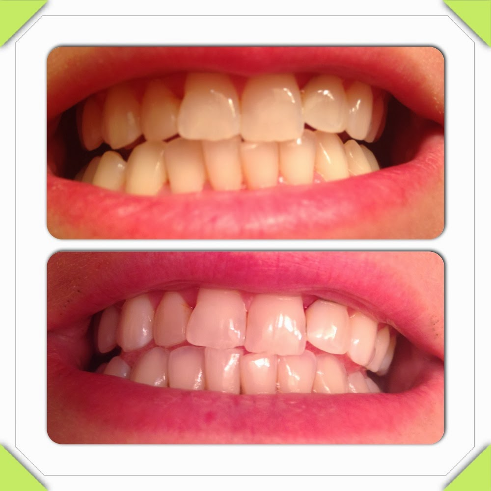 Live Laugh Love With Lana Natural Teeth Whitening