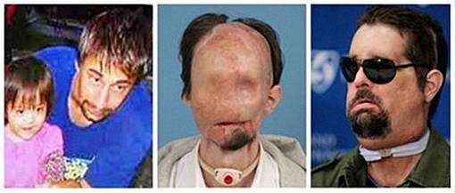 Dallas Wiends Pasien Tranplantasi Wajah Penuh Muncul di Depan Publik Untuk Pertama Kalinya - the facemash post