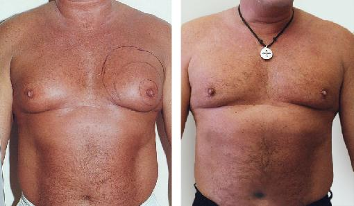 Man boob before and after photos