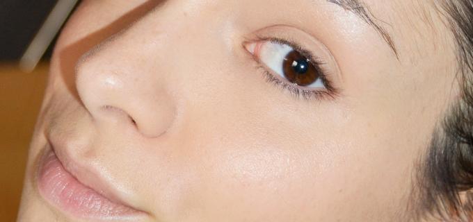 como tapar acne