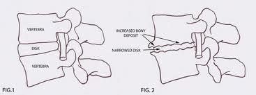 Pain & Rehabilitation: Lumbar Spondylosis