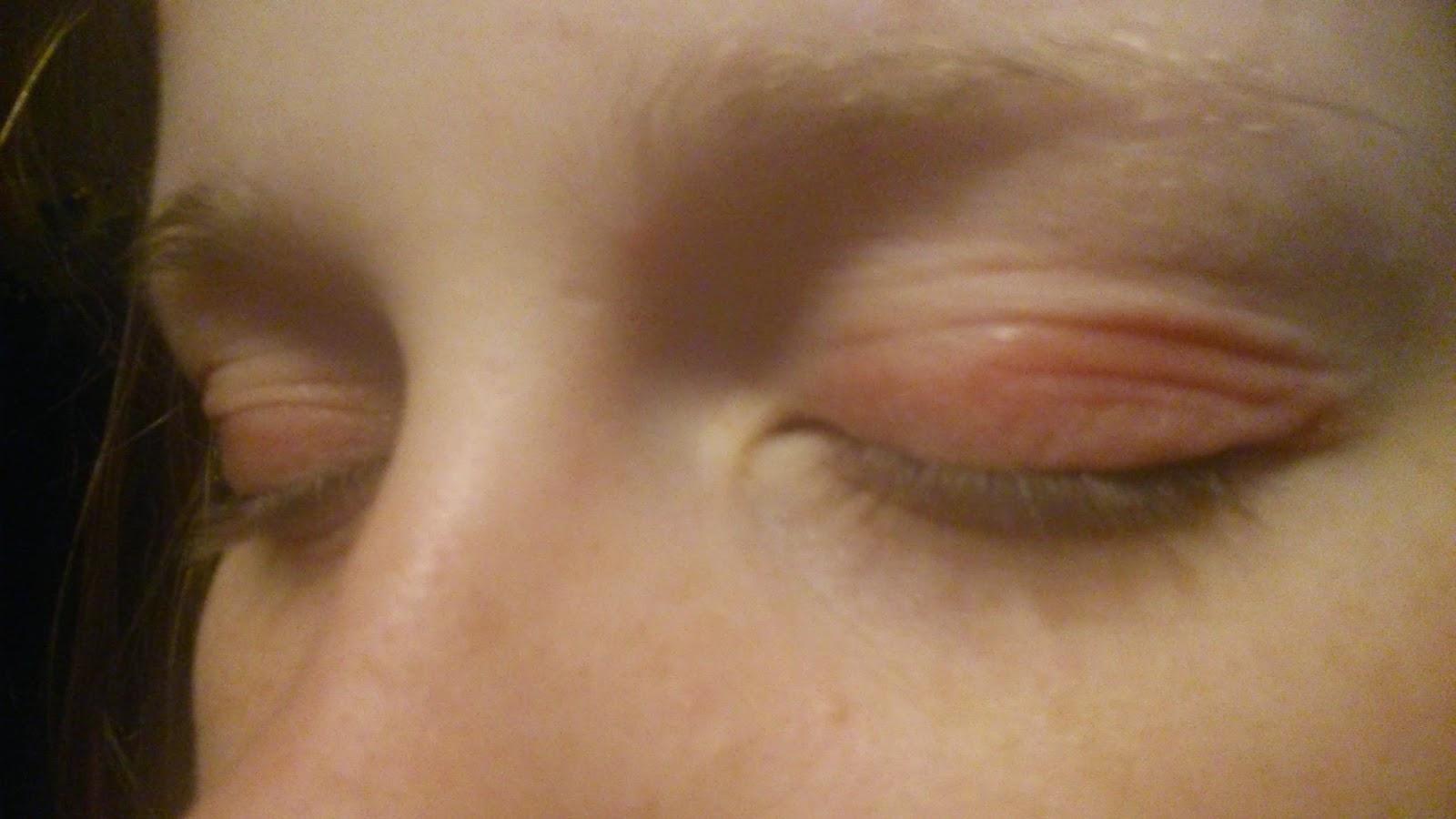 torra ögonlock behandling