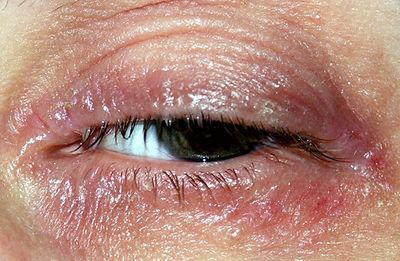 Natural Treatment For Eczema Around Eyes Sweet Additions
