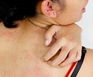 Cara Mengobati Alergi Kulit Gatal Gatal Menahun