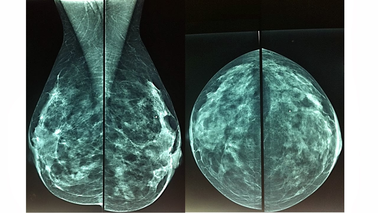 Infrared thermography for breast cancer detection