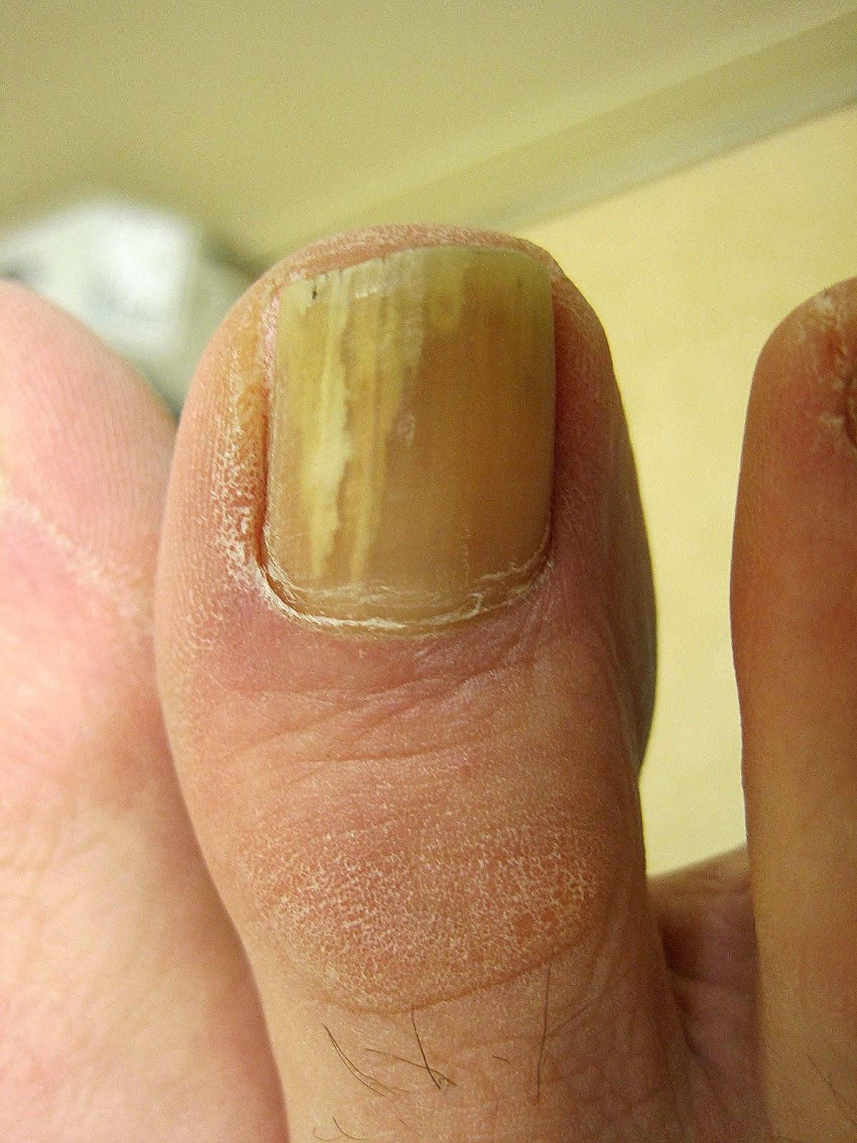 Why is my toenail yellow? | Louisiana Podiatrist - Gulf South Foot ...