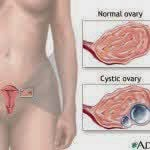 Several types and kinds of ovarian cysts in women
