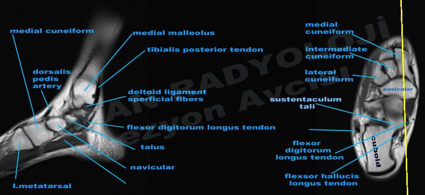 Uzman Radyoloji Lezyon Avcs Ayak Ble Ve Ayak Mri Kestsel