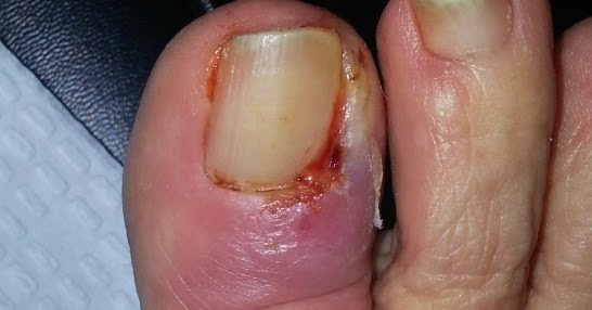 Badly Infected Ingrown Toenail Center for Ankle and F...