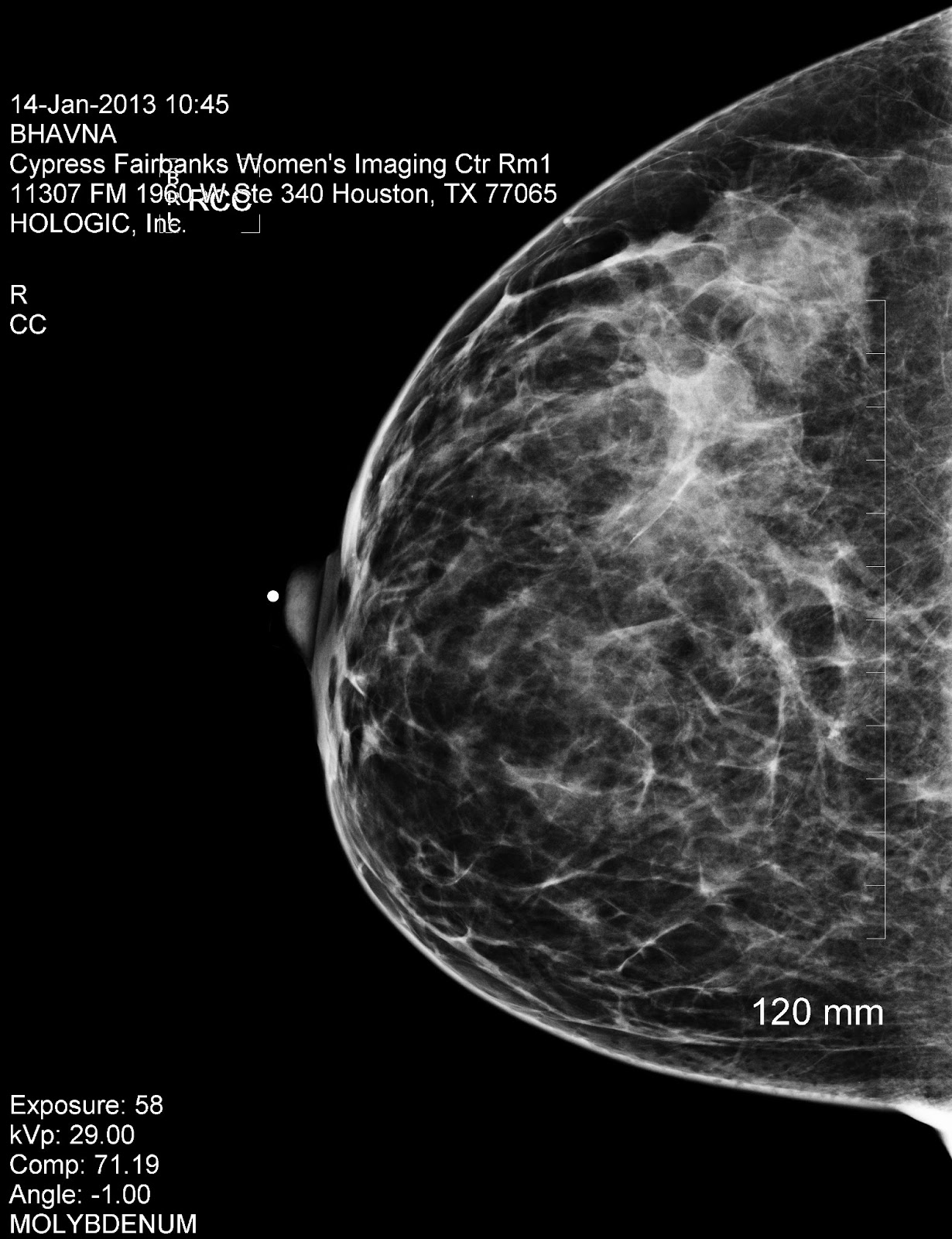 cancer chronicles mammogram and ultrasound