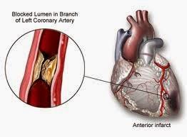 obat penyumbatan pembuluh darah jantung