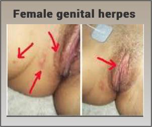 Genital herpes cure